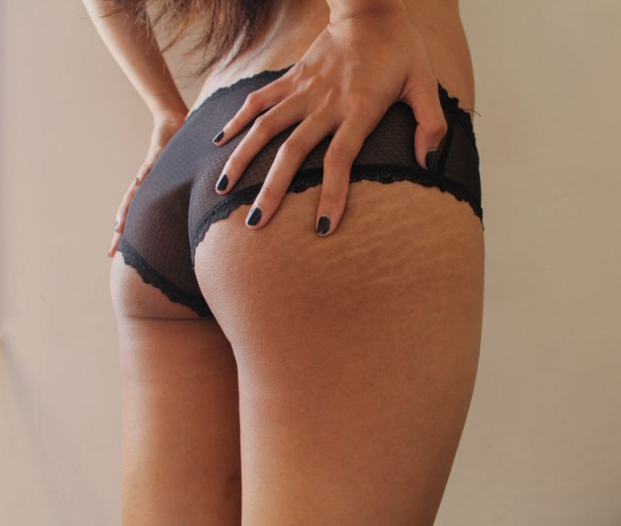 Reality Is Girls Have Stretch Marks